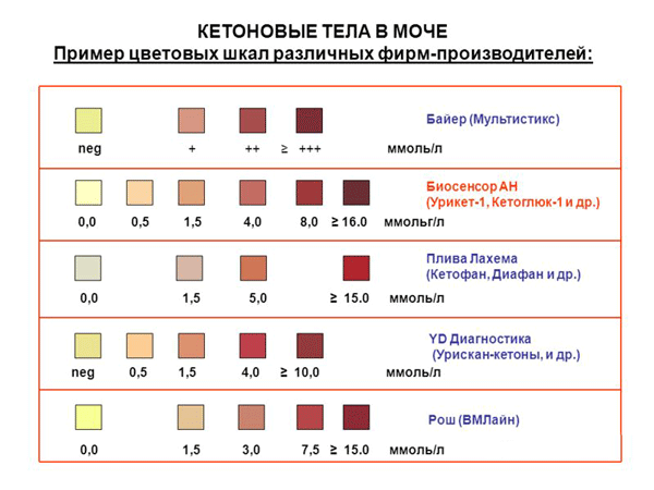 Причины образования кетонов в моче - тест в домашних условиях