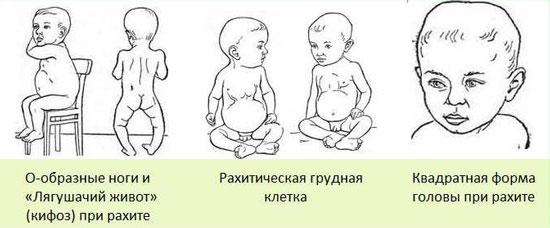 К чему приводит недостаток кальция у детей
