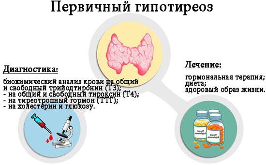Диагностика при первичном гипотиреозе