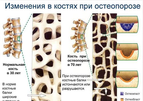 Обследование на остеопороз - какие анализы сдают