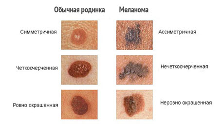 Онкомаркер меланомы s100