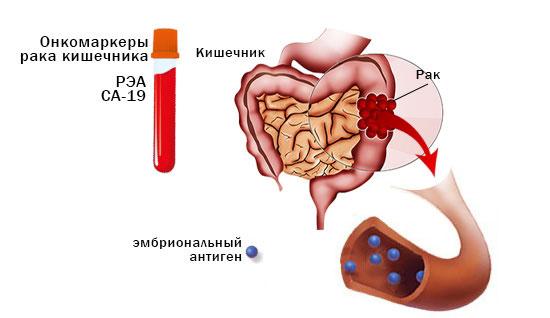 Раково-эмбриональный антиген при диагностике рака кишечника