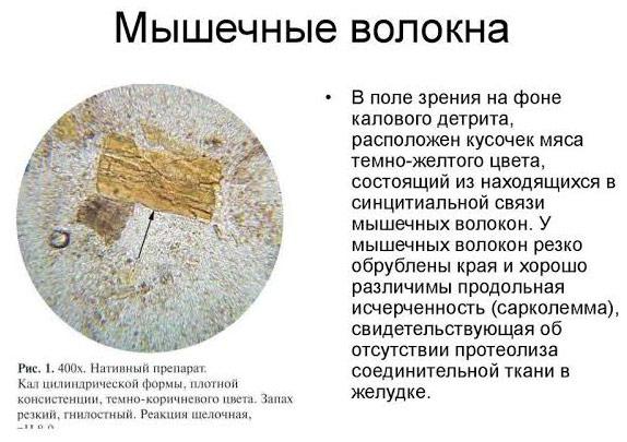 О чем говорит наличие мышечных волокон в кале при проведении анализа