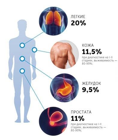 Процент вероятности возникновения рака у мужчин