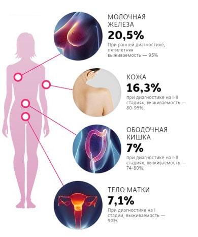Вероятность онкологии у женщин различных органов