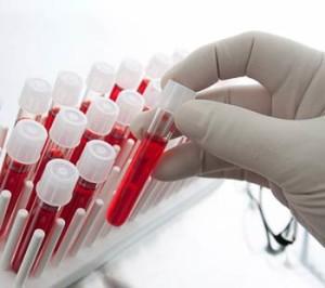 Можно ли по крови определить рак