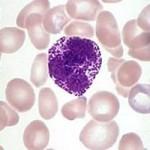 базофилы в анализе крови