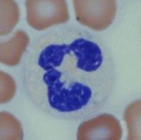 нейтрофилы в анализе крови