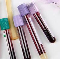 Гиперпротеинемия и гипопротеинемия - отклонение белка в биохимическом анализе крови