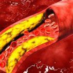 причины отклонения от нормы триглицеридов в анализе крови