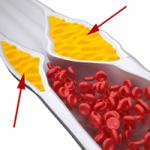 плохой холестерин в крови оседает на стенках сосудов