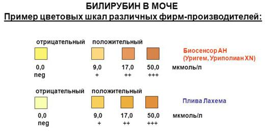 Цветовая шкала для определения билирубина в анализе мочи