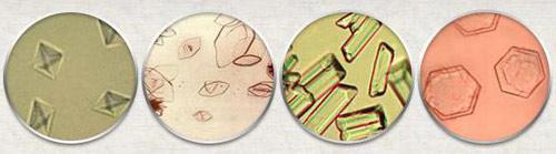 Какие соли обнаруживаются в анализе мочи и о каких заболеваниях свидетельствуют