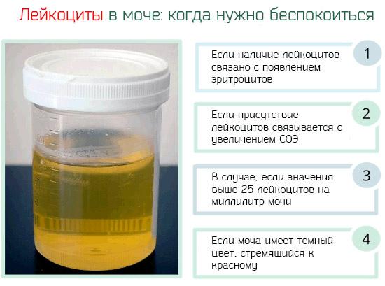 только повышенное содержание лейкоцитов в моче у ребенка в год Нет