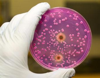 Зачем и как проводят бактериологический посев на микрофлору