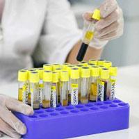 Анализ крови ггтп гамма-глутамилтранспептидаза влияет ли простуда на биохимический анализ крови