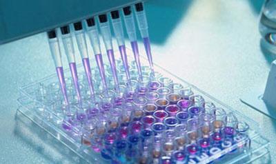 Расшифровка анализа крови методом ИФА