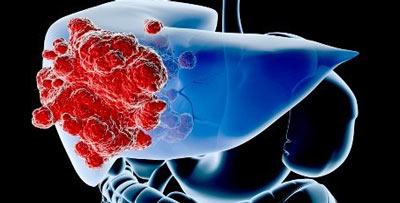 Почему повышается значение в крови альфа-фетопротеина