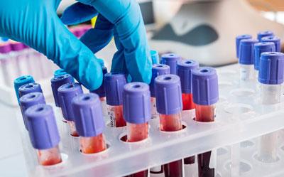 В каких случаях для проведения исследования назначается анализ крови из вены
