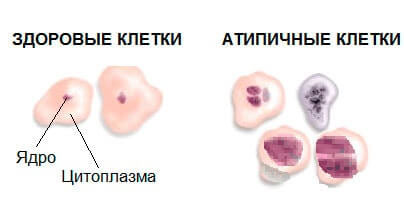 Что такое и чем опасны атипичные клетки