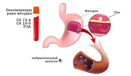 Расшифровка и показания к сдаче онкомаркера СА 72-4