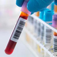 Что показывает РЭА онкомаркер