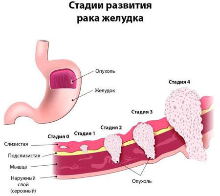 Стадии развития рака желудка