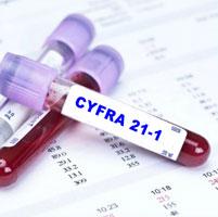 Анализ крови на онкомаркер cyfra 21-1