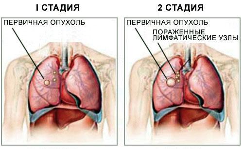 Цитокератин 19 - маркер опухоли легких