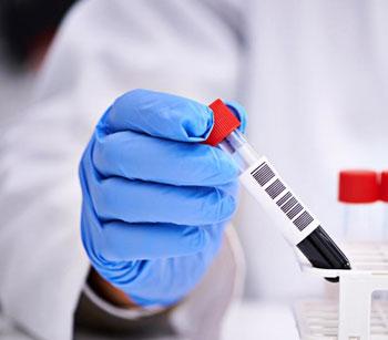 Подготовка к сдаче гормонов катехоламинов