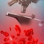 что нельзя перед сдачей общего анализа крови