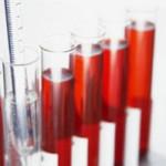 Для чего и когда нужно сдавать анализы на гликированный гемоглобин