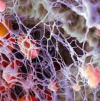 Тромбокрит повышен или понижен причины и лечение
