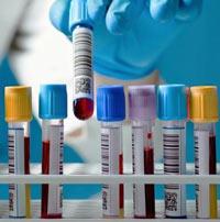 что показывает анализ на с реактивный белок