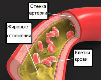 жировые отложения плохого холестирина на стенках сосуда