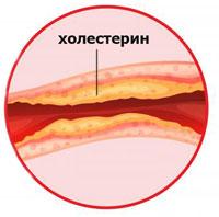 Признаки и симптомы повышенного холестерина в крови