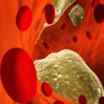 Повышенный холестерин, что делать в домашних условиях