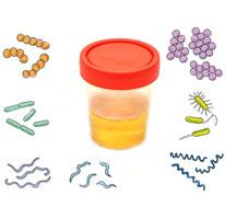 Что такое бактериурия и чем опасны бактерии в моче