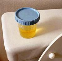 При каких заболеваниях повышенная диастаза в моче