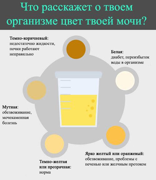 Почему моча ярко–желтого, светлого, лимонного цвета