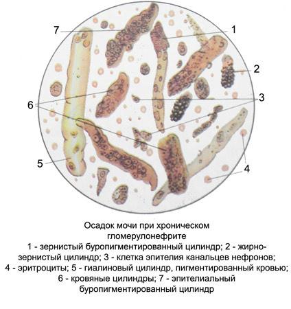 Осадок в моче при гломерулонефрите