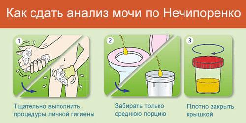 Как правильно собрать и сдать мочу по Нечипоренко?