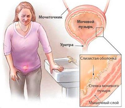 Восспаление слизистой оболочки мочевого пузыря у женщины