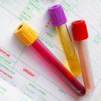 Какие гормоны щитовидной железы нужно сдавать