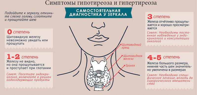 Симптомы и степени проявления гипертиреоза