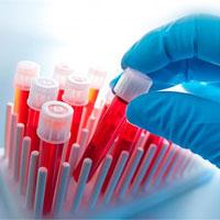 Какие анализы на остеопороз нужно сдать и сколько это стоит