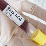 Уровень гормона ХГЧ в крови позволяет определить беременность