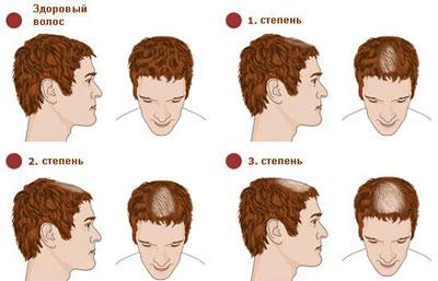 Как влияет уровень гормона дигидротестостерона на облысение у мужчин