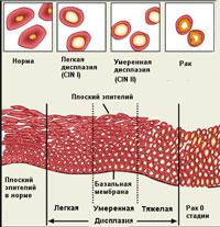 Почему появляются атипичные клетки шейки матки?