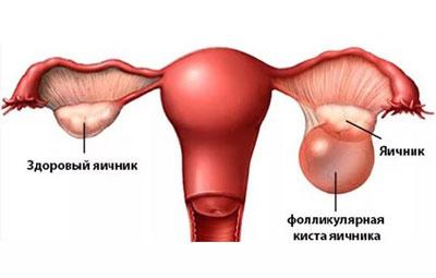 Почему повышаются значения онкомаркера СА 125 у женщин